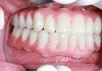 ما هو نوع من طبيب الأسنان استشارة دائمة لاستبدال الأسنان؟