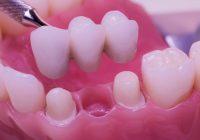 استبدال الأسنان الدائم: تقنيات مختلفة تستخدم لجسور الأسنان