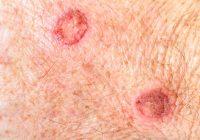 皮肤癌的警告信号
