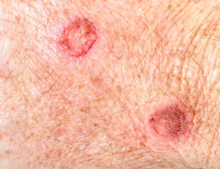 Warnzeichen von Hautkrebs