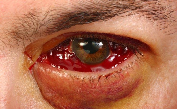 Desprendimiento de retina después de la inyección intravítrea: cuando falla el tratamiento de degeneración macular