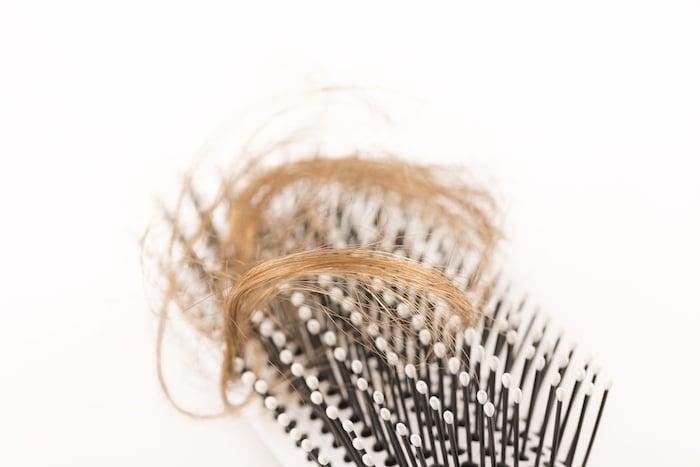 La pérdida de cabello o una próstata agravada pueden causar disfunción y depresión sexual irreversible