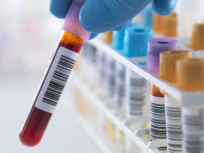 Períodos perdidos devido a anemia