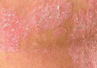Tratamientos naturales para la psoriasis