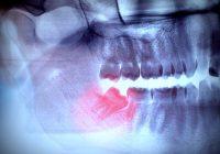 非手术切除智齿:对后续护理的期望和建议