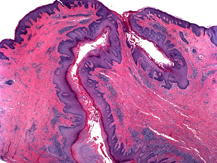Existe algum mérito no tratamento da Hidradenite Supurativa com Metformina?