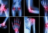 Sollte ich Acorus Calamus (süße Flagge) verwenden, um die Symptome von Arthritis zu lindern?
