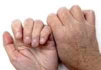 Überwiesene Schmerzen und Fibromyalgie