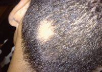 Causas de pérdida de cabello localizada
