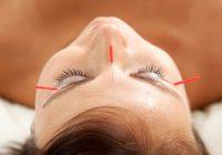 Kann Akupunktur helfen, die chronischen Schmerzen der Lyme-Borreliose zu lindern?