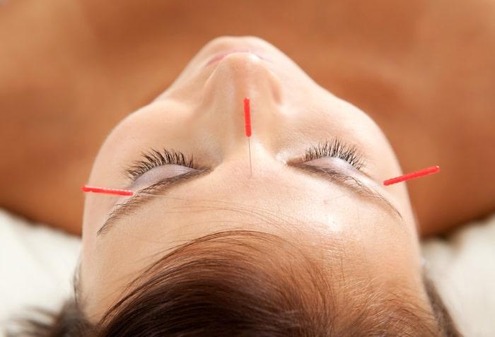 ¿La acupuntura puede ayudar a controlar el dolor crónico de la enfermedad de Lyme?