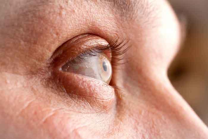 كيف تتم معالجة متلازمة مرض لايم بعد العلاج (مرض لايم المزمن)؟