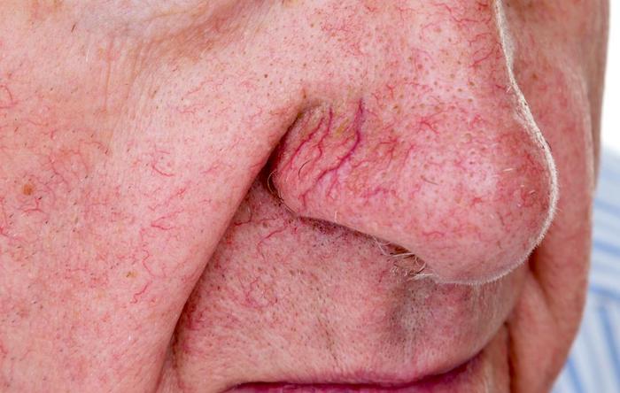 Qué hacer con las venas de araña y los vasos sanguíneos rotos en la cara