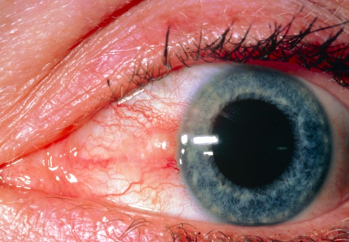 ما الذي يجب أن يعرفه المرضى عن pinguecula؟