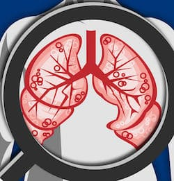 COPD Pocket Consultant Guide