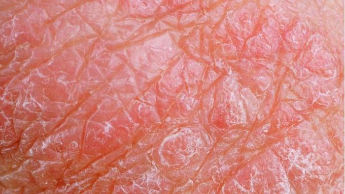 Éruption cutanée, peau qui pèle, démangeaisons ou peau sèche dans le scrotum