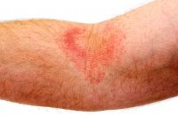 Intertrigo: Que pouvez-vous faire avec l'éruption cutanée qui affecte les plis de la peau?