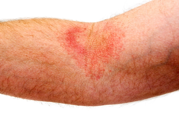 Intertrigo: ¿Qué puede hacer con la erupción cutánea que afecta los pliegues de la piel?