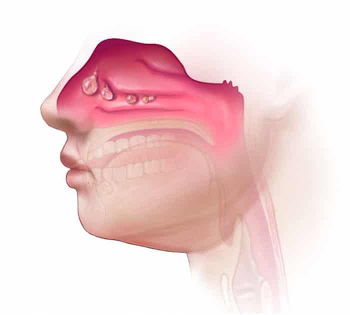 Pólipos nasales y dolor nasal