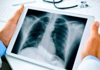 Radiografía de tórax - Procedimiento y comprensión básica de la interpretación