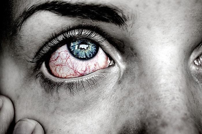 Sobreviviendo a Polimiositis