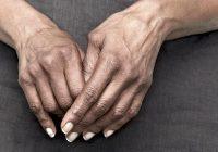 Artrite reumatóide: uma condição auto-imune que afeta as articulações