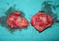 Amigdalectomía: una breve descripción