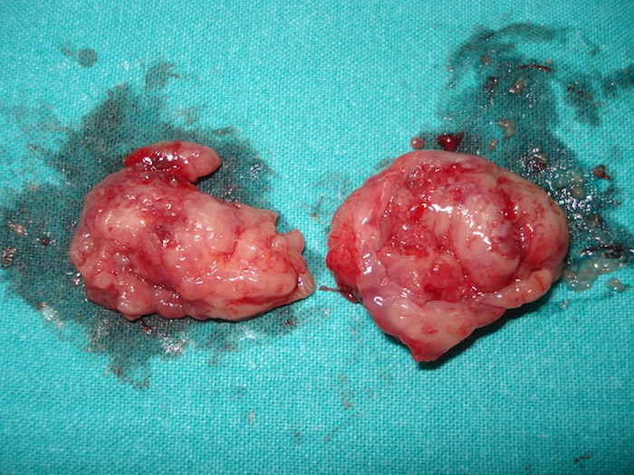 Amygdalectomie: une brève description