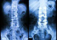 Qué esperar después de la cirugía de la columna cervical