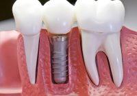 هل يمكن لمرض اللثة (اللثة) أن يفسد زراعة الأسنان الموجودة؟ هل تجعل جديدة جديدة مستحيلة؟