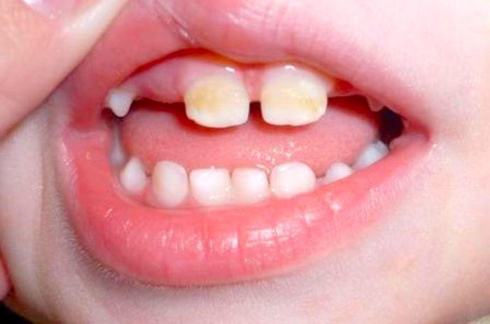 Enfermedad de las encías en adolescentes: periodontitis agresiva