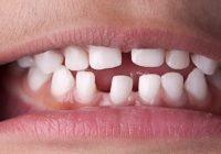 Las espacios entre mis dientes continúan haciéndose más amplios: ¿por qué sucede esto y cómo se puede detener?