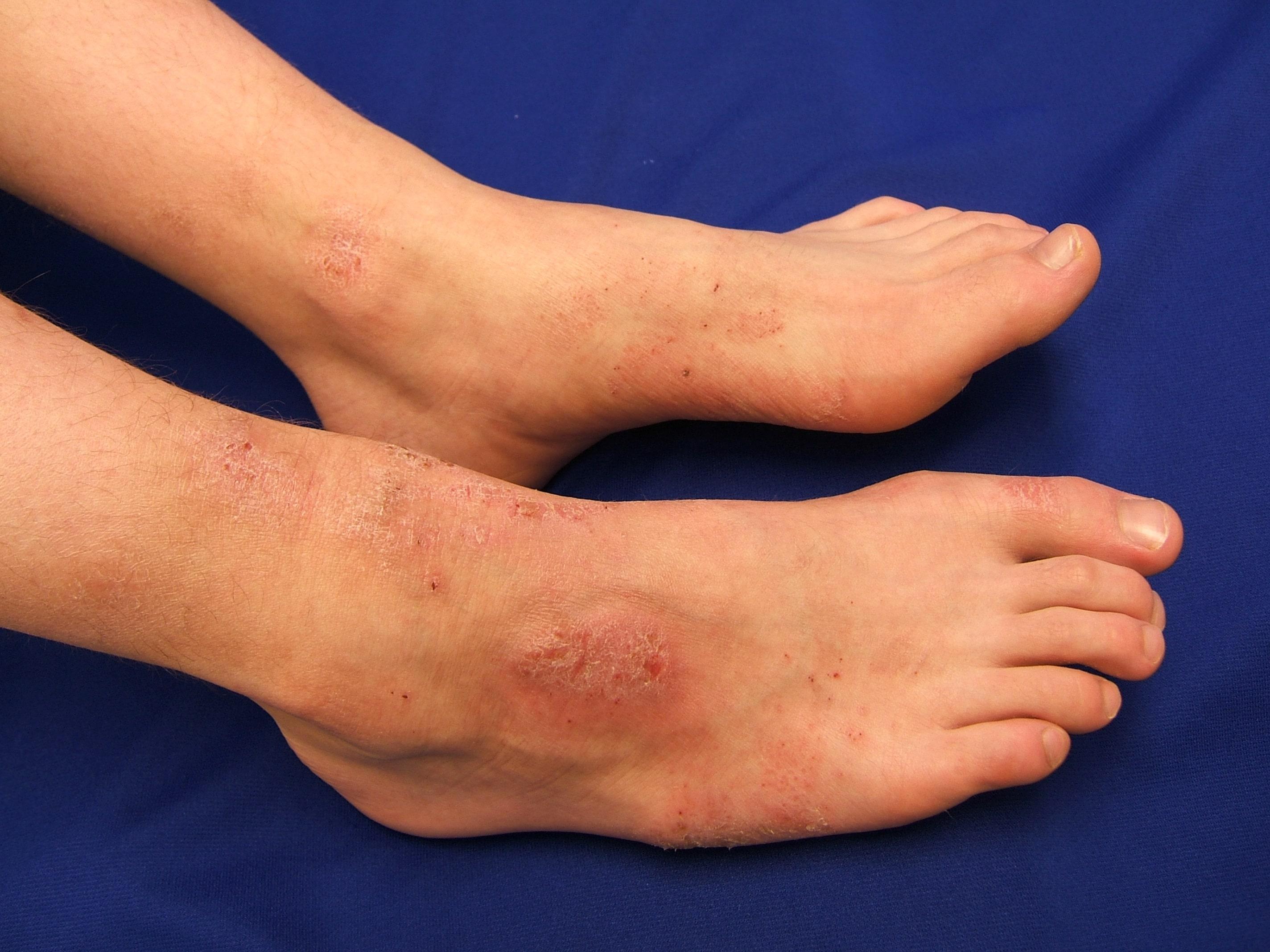 Manejo del eczema: cambios de estilo de vida recomendados