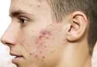 Erhalten Sie einen Impfstoff gegen Akne?