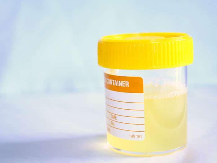 Pouvez-vous vraiment avoir du sperme dans votre urine?