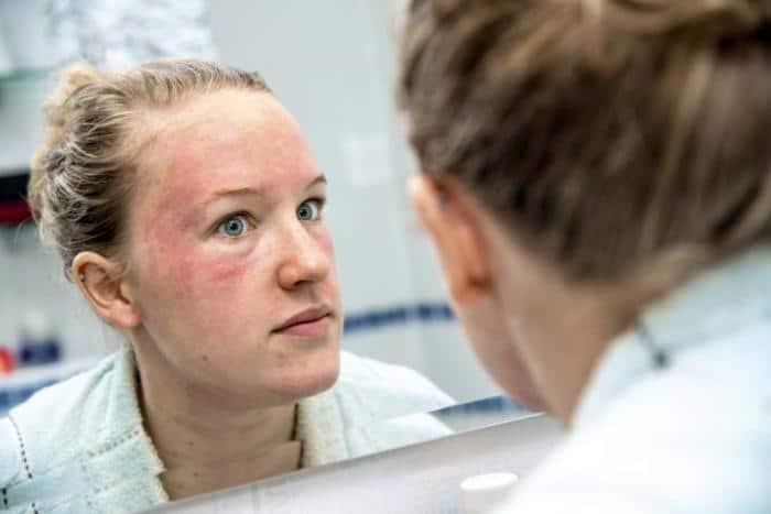 如果皮疹伴随疼痛或肿胀而发生,则应去看医生。