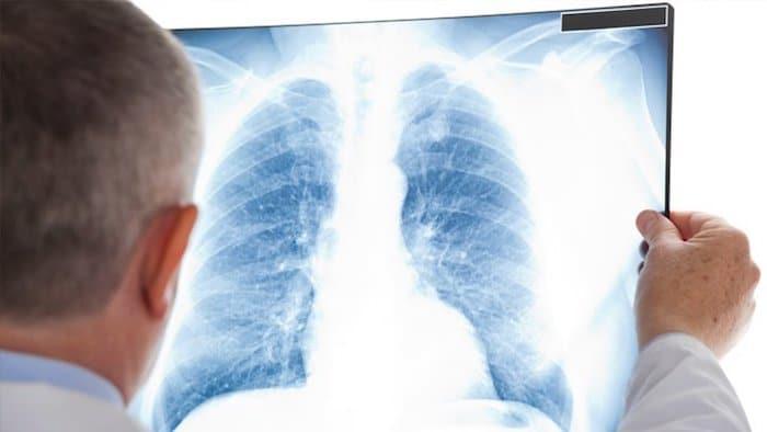 Densidades sospechosas en los pulmones: ¿un síntoma de infección pulmonar?