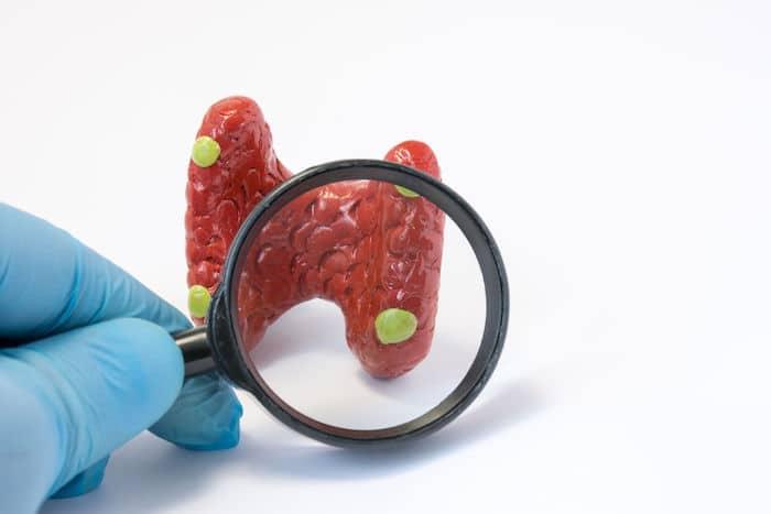 Tratamiento del hiperparatiroidismo primario