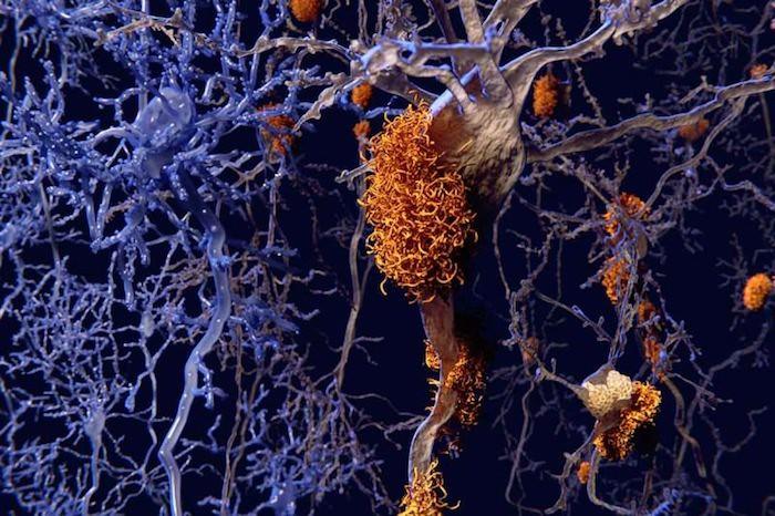 Un estudio encuentra nuevas formas de destruir las placas de Alzheimer