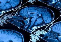 Usando imagens de ressonância magnética, os pesquisadores puderam ver que o novo medicamento atrasa a contração cerebral em pessoas com EM