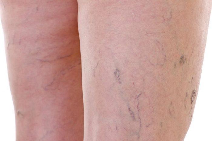 Las venas varicosas que se pican y se hinchan son un signo temprano de dermatitis de estasis.