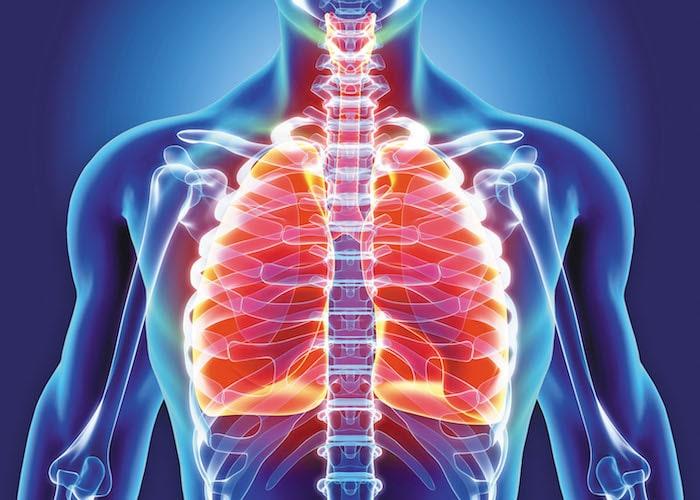 Bronquitis aguda: ¿realmente necesita antibióticos?