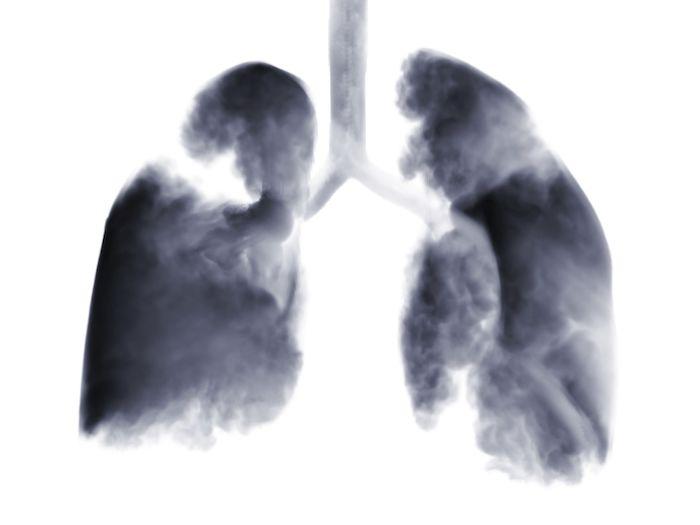 Densidades sospechosas en los pulmones: relacionados con la infección por hongos ¿histoplasmosis?