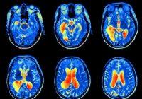 Como ocorre a inflamação crônica no cérebro?