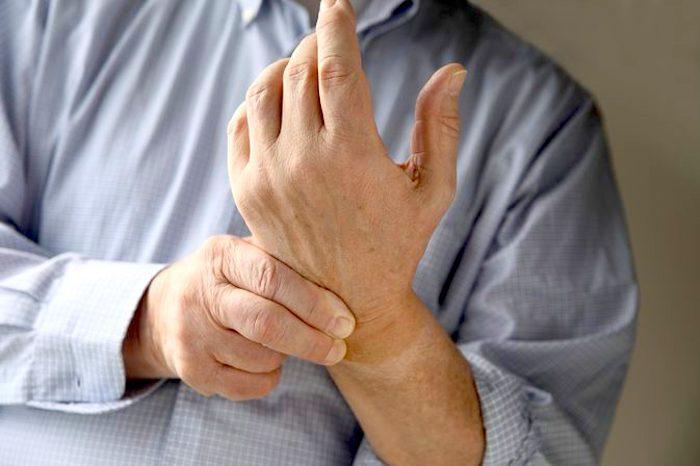 La AR puede causar rigidez e hinchazón en la muñeca