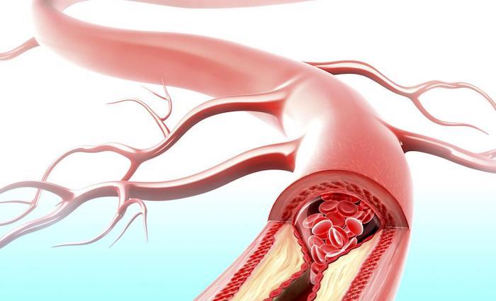 La inflamación afecta el proceso de formación de placa en las arterias