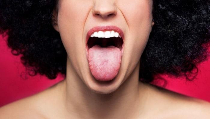 القرحة والآفات والأورام الحليمية الحرشفية يمكن أن تسبب تورمًا في سقف الفم