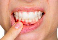 Problemas com as gengivas: gengivite (inflamação das gengivas) vs. periodontite (doença das gengivas)