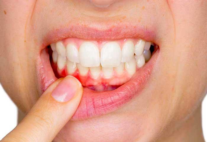 Problemas con las encías: gingivitis (inflamación de las encías) Vs. periodontitis (enfermedad de las encías)
