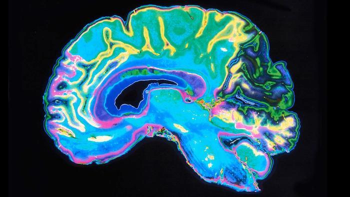 Une nouvelle recherche suggère qu'il existe un facteur central qui régit tous les traits de personnalité négatifs: le facteur D